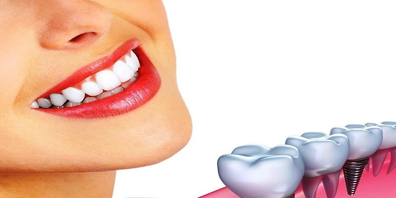 Why Your Jawbone Influences Your Suitability For Dental Implants